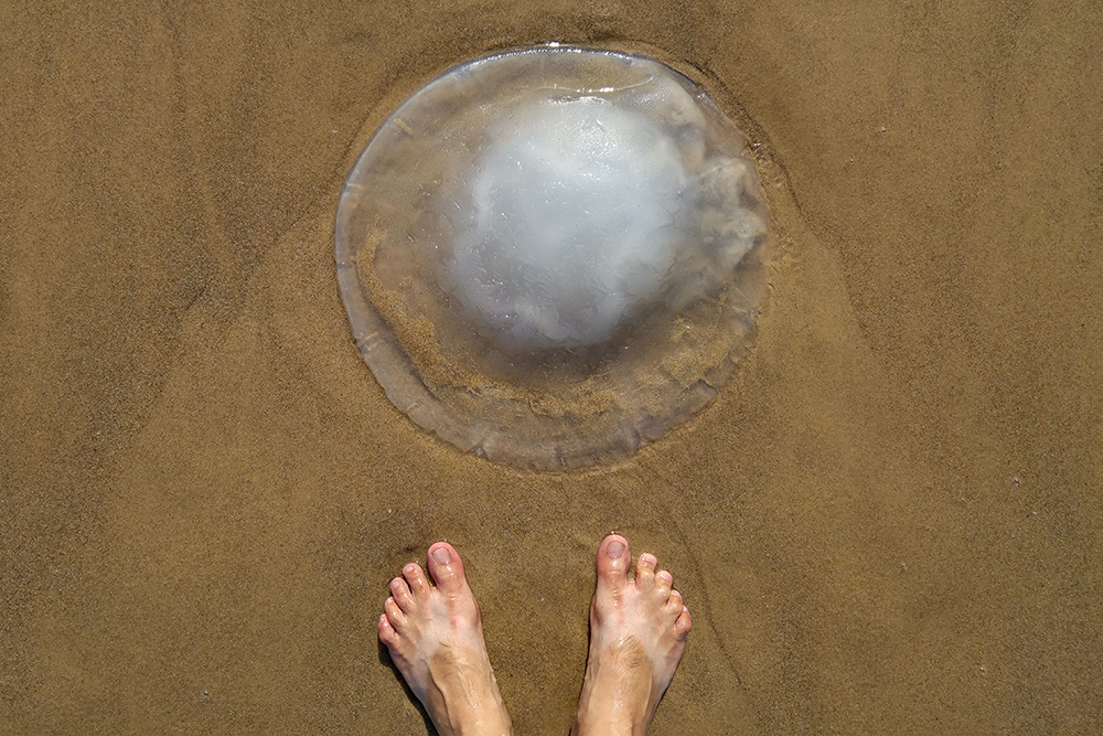 How to Cure a Jellyfish Sting